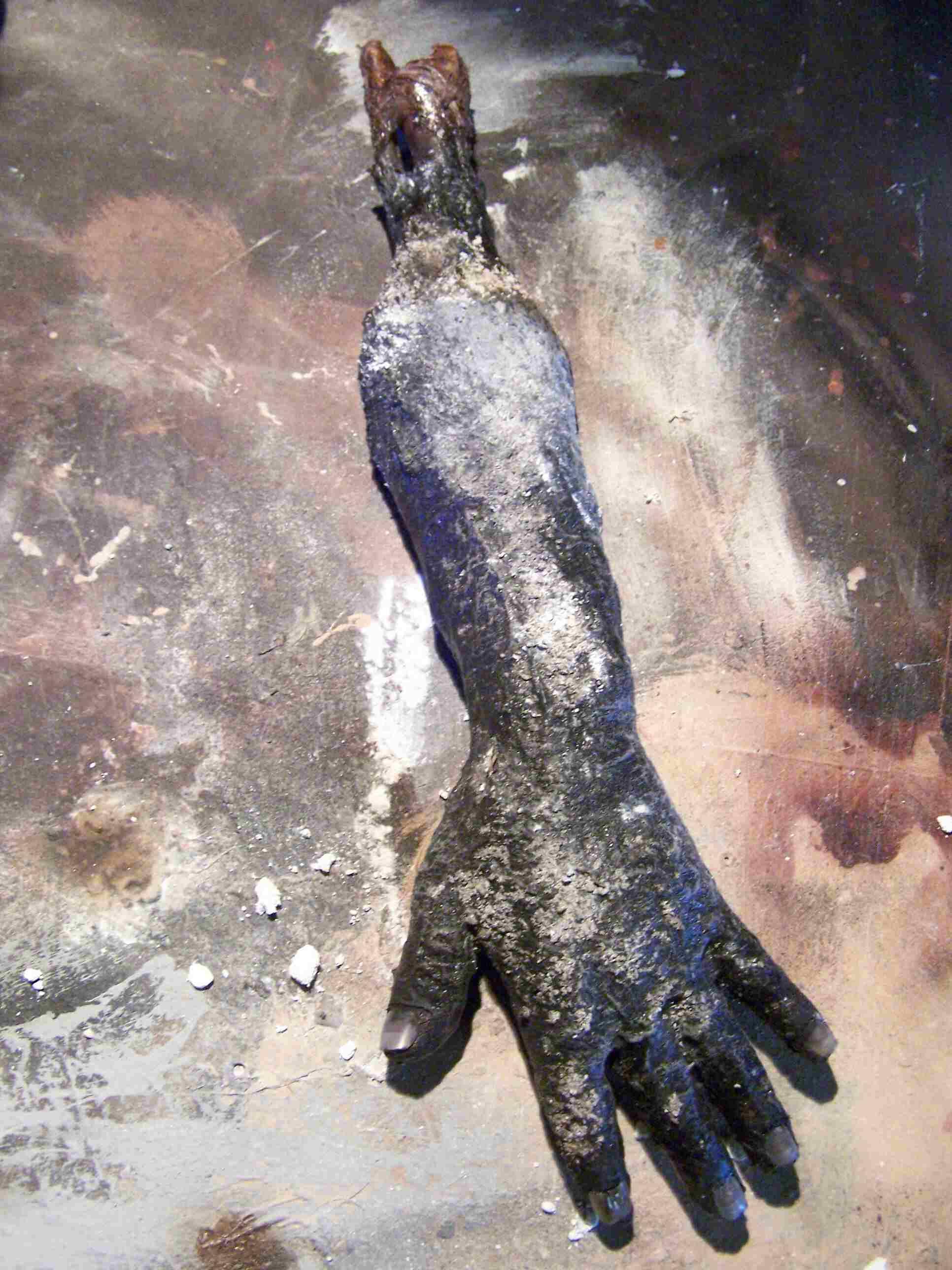 Burnt_Severed_Hand.jpg